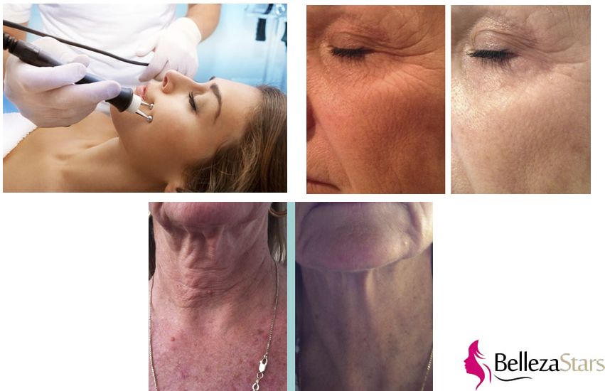 Ipl Brown Spot Removal Beauty Machine Supplier