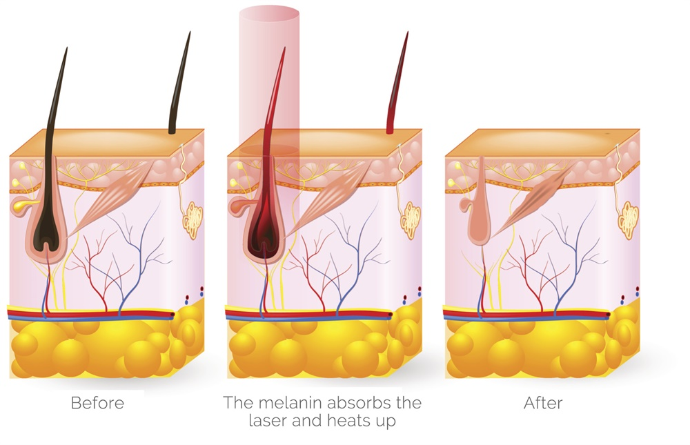 laser-hair-removal-how-it-works