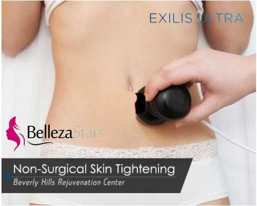 Exilis Ultra Skin Tightening Treatment