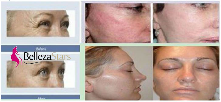 skin care rf cavitation system before and after beauty machine supplier. Black Bedroom Furniture Sets. Home Design Ideas