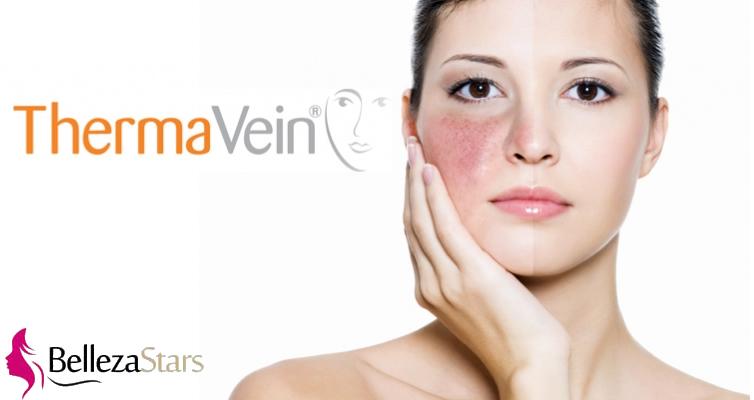 Thermavein Treatment