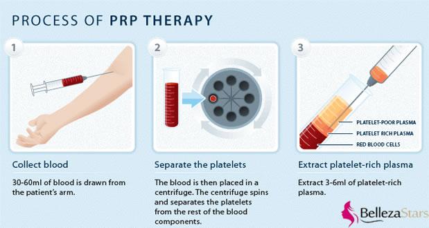 platelet rich plasma therapy