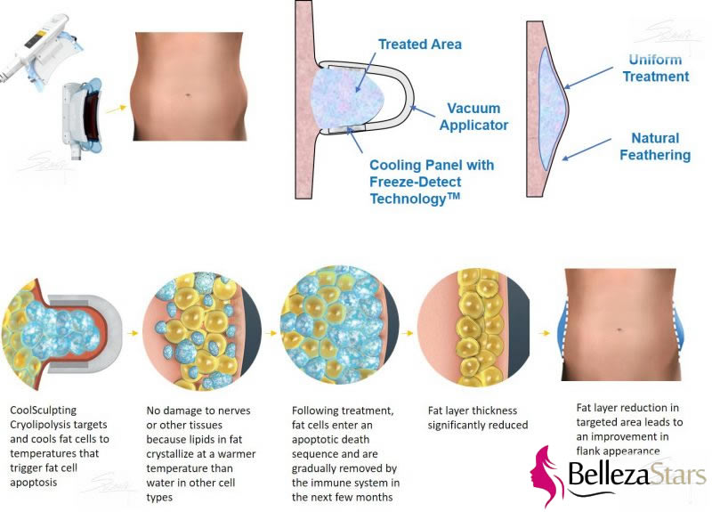 CoolSculpting Technology