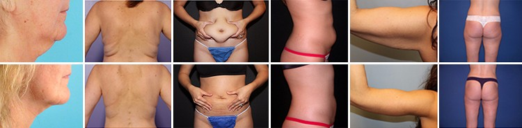 RF Liposlim Cavitation Machine Treatment Results Before and After