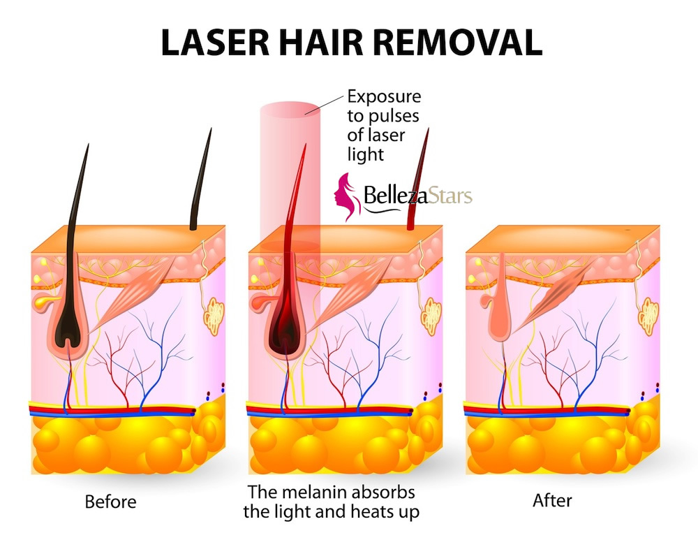 Permanent Hair Removal Diode Laser Depilation Machine