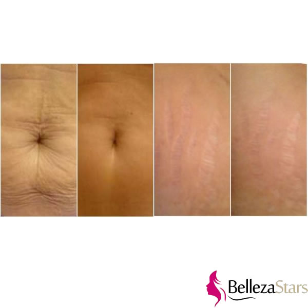 Intense Radio Frequency Skin Tightening (Body)