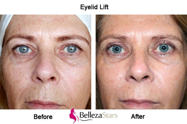 Eyelid Lift Blepharoplasty Surgery