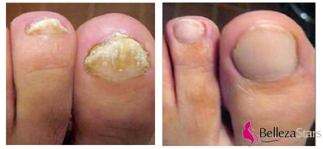 Laser Onychomycosis (Nail Fungal) Treatment