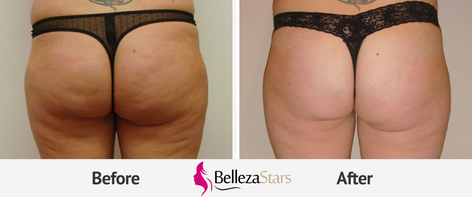 Vanquish ME Body Sculpting Treatment Before and After