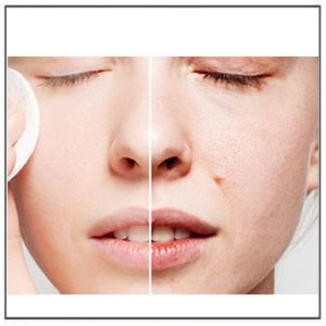 Enlarged Pores