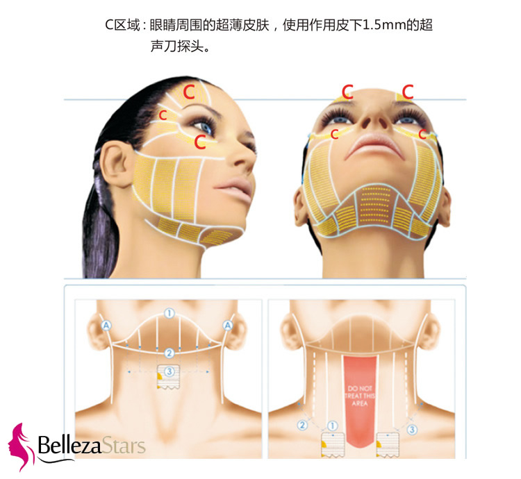 HIFU Facial Lifting Science