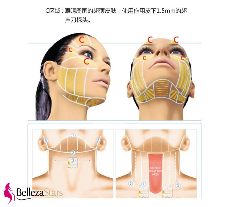 HIFU Facial Lifting Science