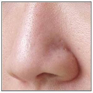 Pores Reduction