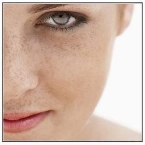 Remove Freckles