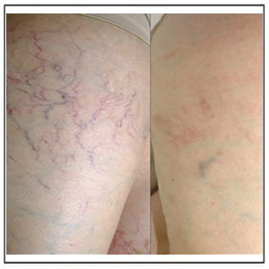 Spider Veins Removal