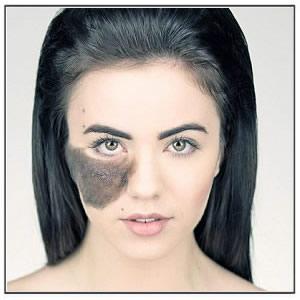 birthmark-removal