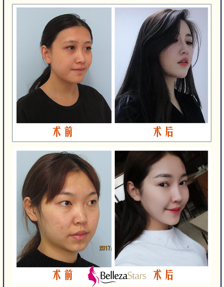 What are Double eyelid surgery postoperative care