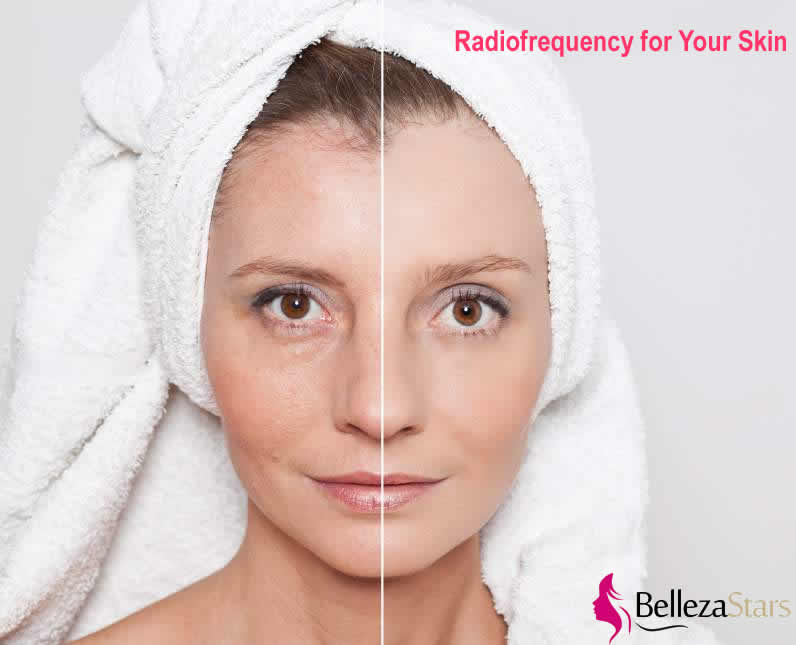 What Can Radiofrequency Do for Your Skin