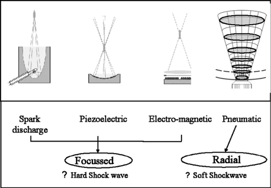 Essential shockwave production methods (after Spectrum Technology).