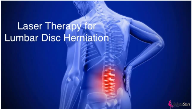 The Best Way LASER to Treat Lumbar Disc Herniation