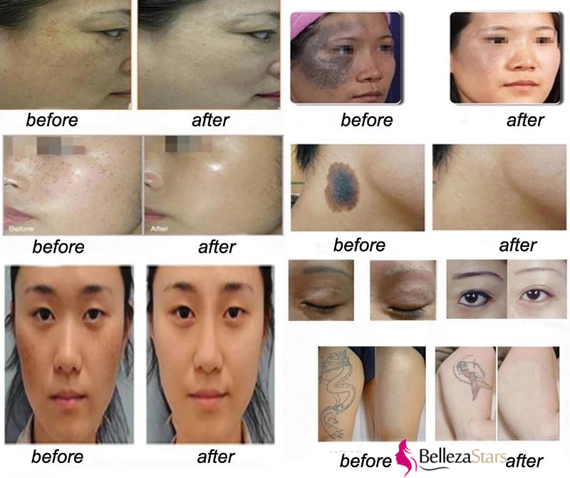 Pico Laser Beauty Instrument Tattoo Removal Acne Scar Treatment Before After