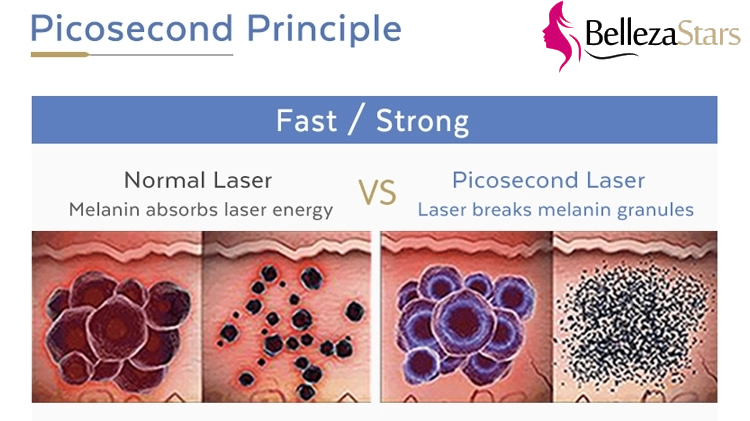 PicoSecond Laser Principle vs Normal Laser