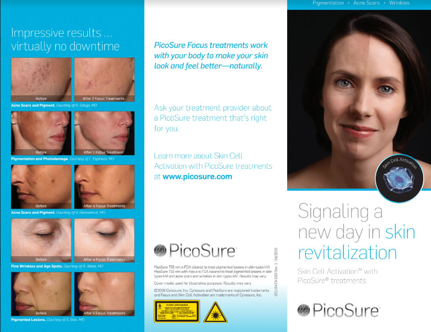 PicoSure Treatment