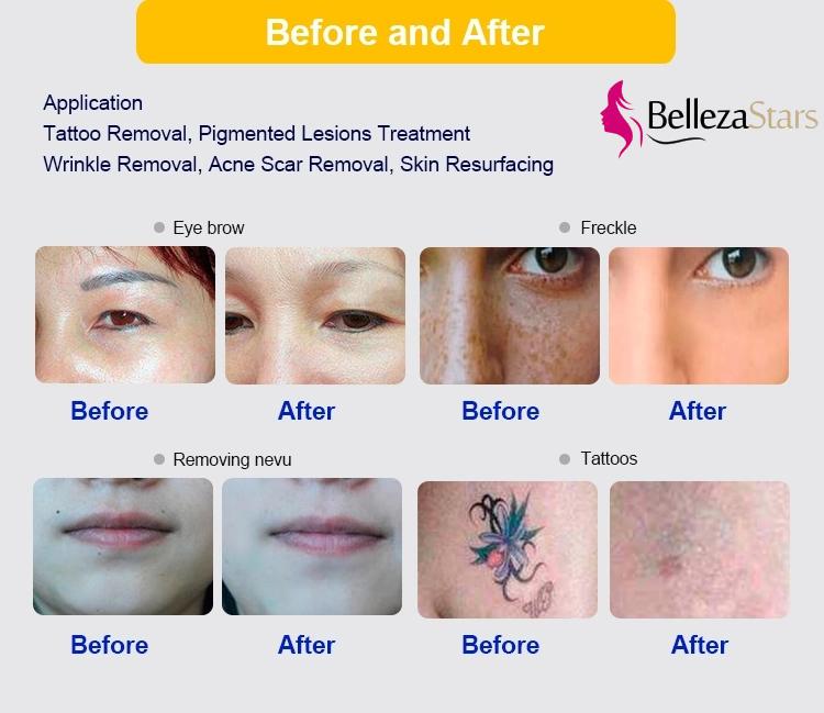 Picosure Beauty Instrument treatment application