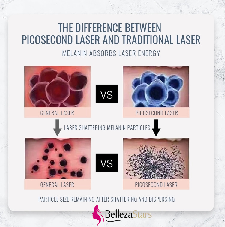 the difference between picosecond laser and traditional laser
