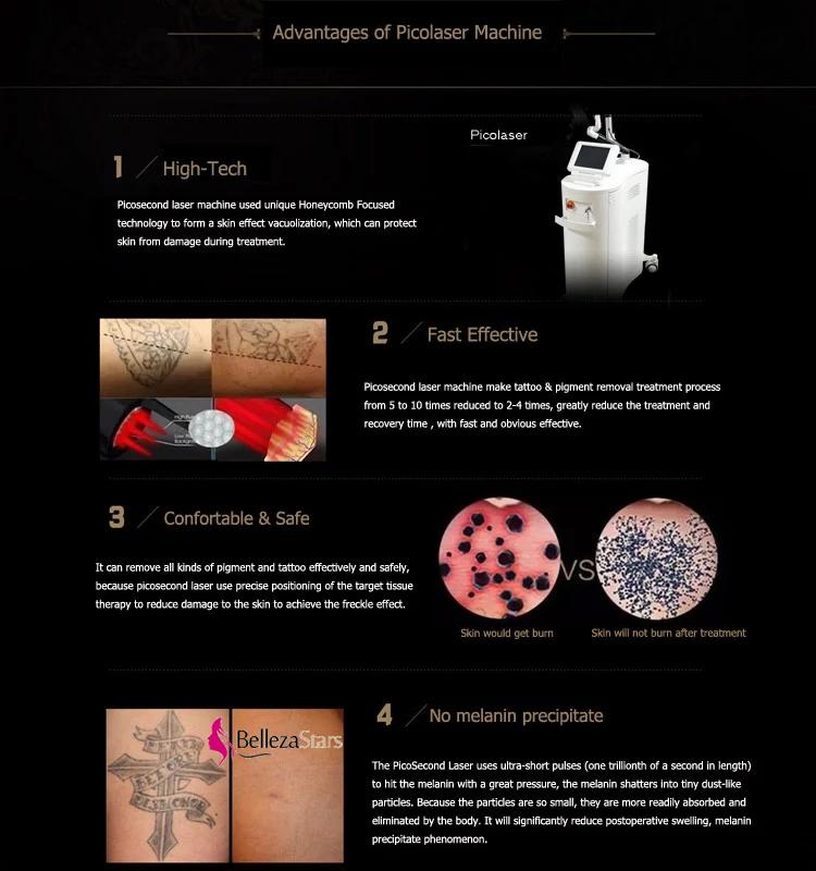 Advantages of Picosecond Laser Pico Laser Beauty Machine
