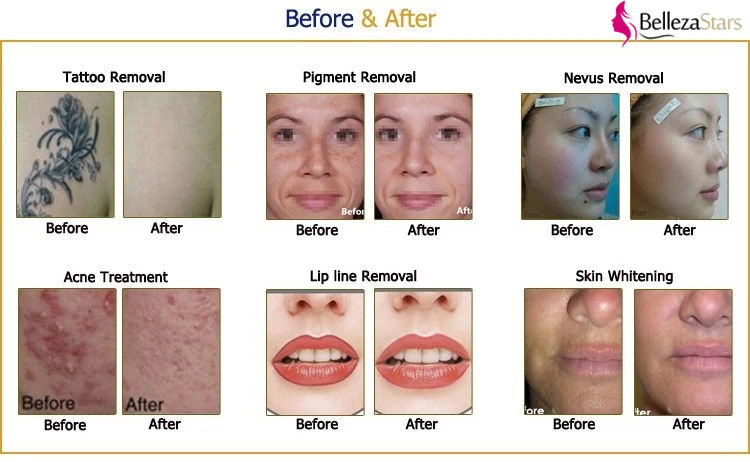 Picosecond Laser Beauty Equipment Before and After