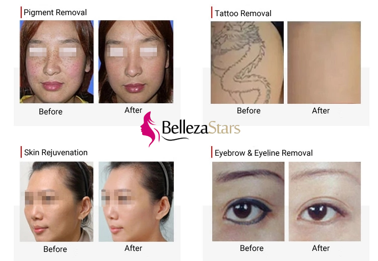 Nd yag Laser Beauty Equipment for Pigment Tattoo Removal Skin Rejuvenation Eyebrow Removal
