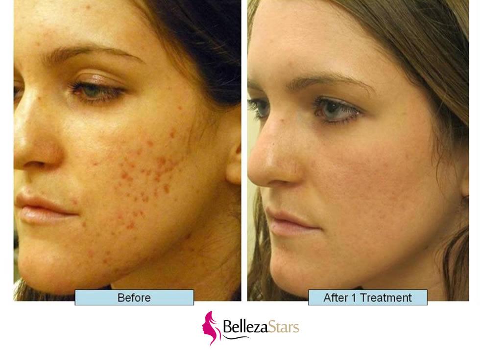 Acne Treatment Procedures