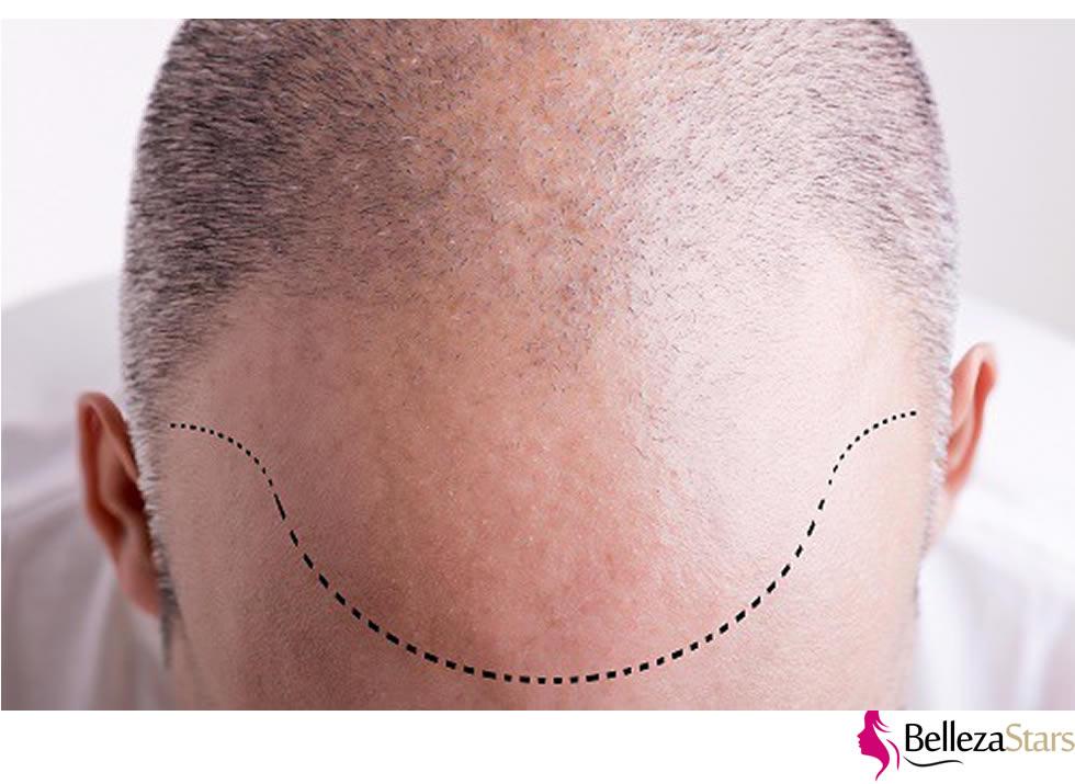 Hair Restoration Procedure